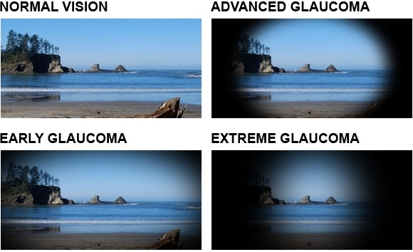 What is Glaucoma? Testing and Treatment - Lee's Summit Eye Doctor